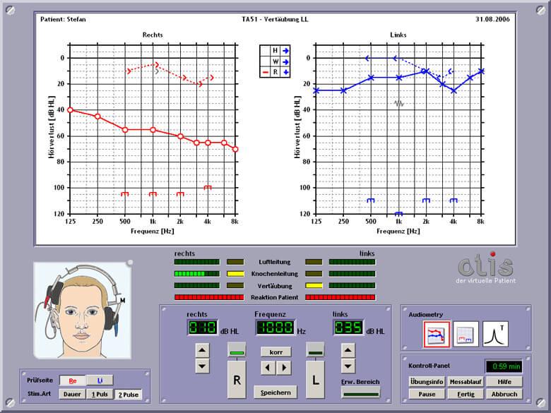OTIS audiometer_DE
